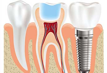 DentaI implants